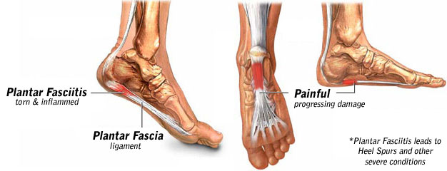 Plantar Fasciitis Why Does it Hurt So Much to Walk With Plantar Fasciitis?