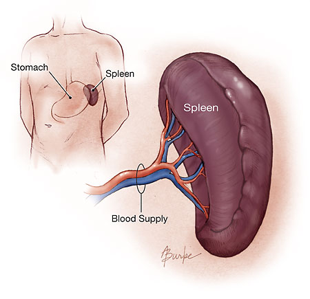 Spleen Why Does my Spleen Hurt?
