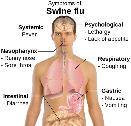 Swine Flu Symptoms Why Does Swine Flu Kill